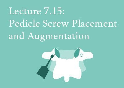 7.15 Pedicle Screw Placement and Augmentation
