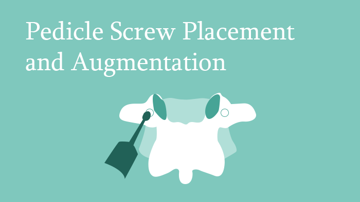 Pedicle Screw Placement and Augmentation lecture thumbnail