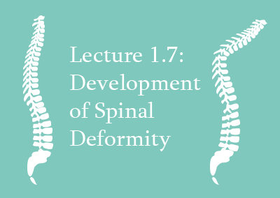 1.7 Development of Spinal Deformity
