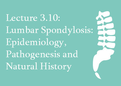 3.10 Lumbar Spondylosis: Epidemiology, Pathogenesis and Natural History