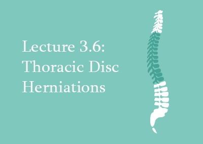3.6 Thoracic Disc Herniations