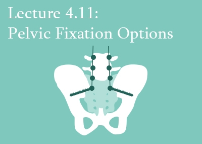 4.11 Pelvic Fixation Options