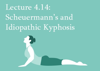 4.14 Scheuermann's and Idiopathic Kyphosis – Management and Outcome