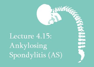 4.15 Ankylosing Spondylitis (AS)