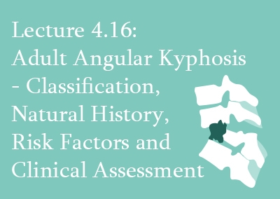 4.16 Adult Angular Kyphosis – Classification, Natural History, Risk Factors and Clinical Assessment