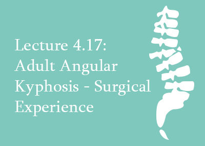 4.17 Adult Angular Kyphosis Surgical Treatment