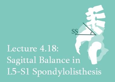 4.18 Sagittal Balance in L5-S1 Spondylolisthesis