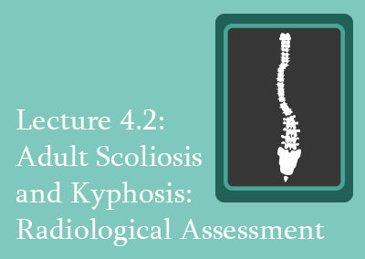 4.2 Adult Scoliosis and Kyphosis Radiological Assessment
