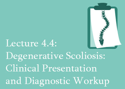 4.4 Degenerative Scoliosis: Clinical Presentation and Diagnostic Workup