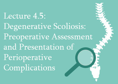 4.5 Degenerative Scoliosis Preoperative Assessment and Prevention of Perioperative Complications