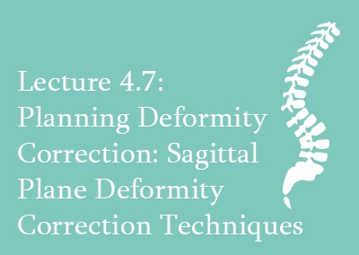 4.7 Planning deformity correction: Sagittal Plane Deformity Correction Techniques