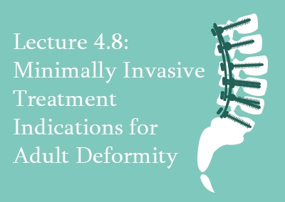 4.8 Minimally Invasive Treatment Indications for Adult Deformity