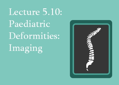5.10 Paediatric Deformities: Imaging
