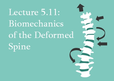 5.11 Biomechanics of the Deformed Spine