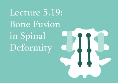 5.19 Bone Fusion in Spinal Deformity
