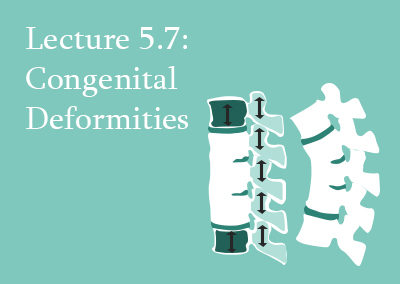 5.7 Congenital Deformities of the Spine