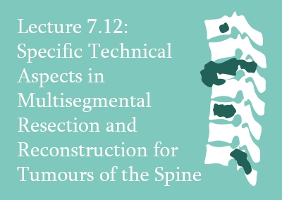 7.12 Specific Technical Aspects in Multisegmental Resection and Reconstruction for Tumours of the Spine