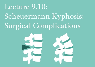9.10 Scheuermann Kyphosis: Surgical Complications