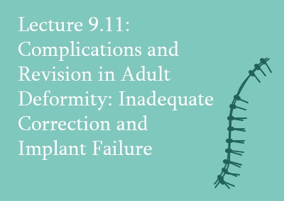 9.11 Complications and Revision in Adult Deformity: Inadequate Correction and Implant Failure