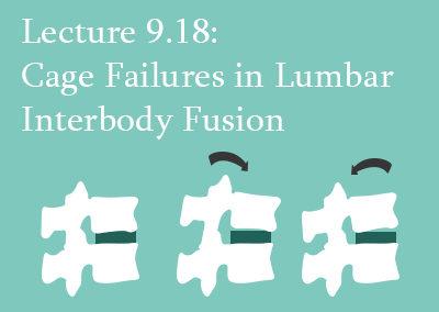 9.18 Cage Failures in Lumbar Interbody Fusion