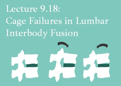 9.18 Cage Failures in Lumbar Interbody Fusion
