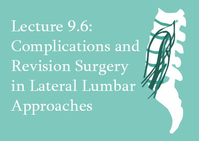 9.6 Complications and Revision Surgery in Lateral Lumbar Approaches