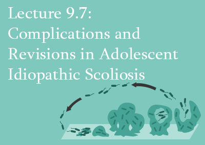 9.7 Complications and Revisions in Adolescent Idiopathic Scoliosis
