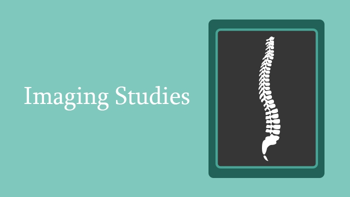 Imaging Studies of the Spine - Lecture Thumbnail