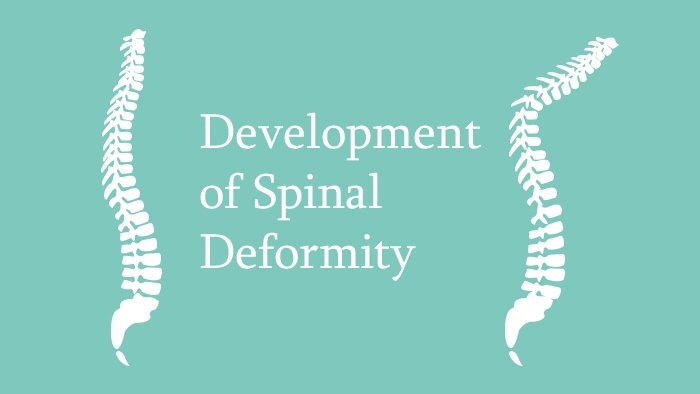 Development of Spinal Deformity Lecture Thumbnail