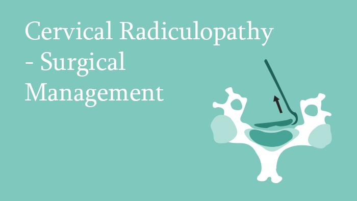 Surgical Management of Cervical Radiculopathy - Spine Surgery Lecture - Thumbnail