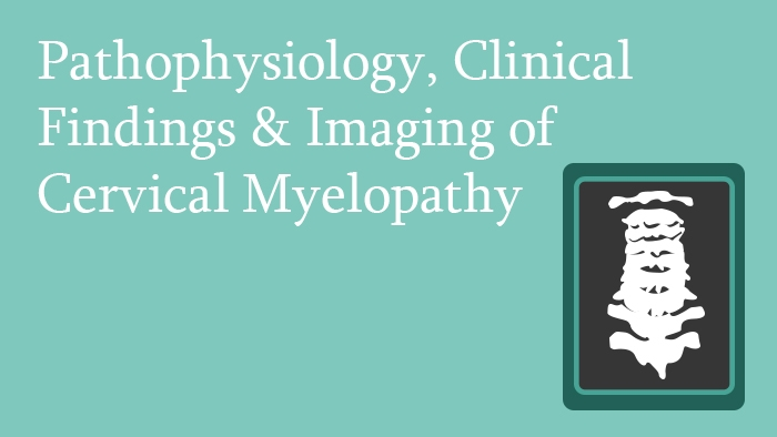 Cervical Myelopathy Pathophysiology, Clinical Findings and Imaging Lecture Thumbnail