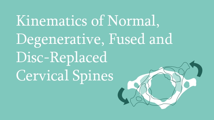 Kinematics of the Cervical Spine - Spine Surgery Lecture - Thumbnail