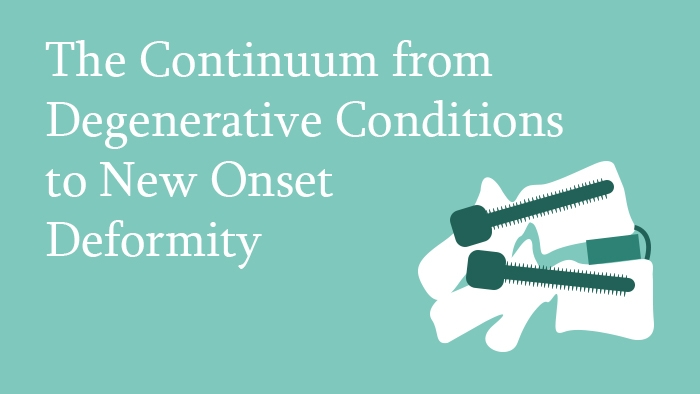 Free Trial Lecture: The continuum from degenerative conditions to new onset deformity