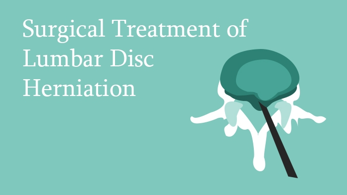 Surgical Treatment of Lumbar Disc Herniation - Spine Surgery Lecture - Thumbnail