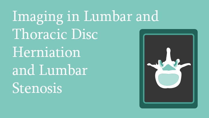Imaging in Lumbar and Thoracic Disc Herniation and Lumbar Stenosis Lecture Thumbnail