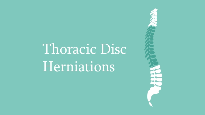 Thoracic Disc Herniations Lecture Thumbnail
