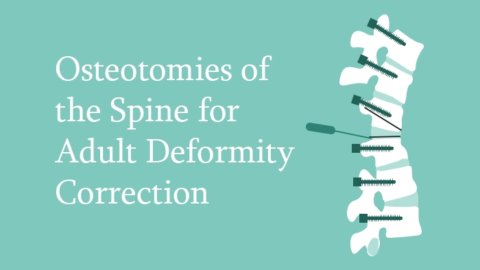 Osteotomies of the Spine for Adult Deformity Correction Lecture Thumbnail