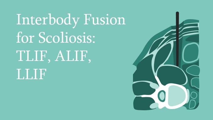 Interbody Fusion for Scoliosis Lecture Thumbnail