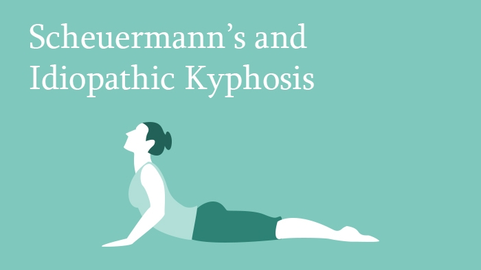 Scheuermann's and Idiopathic Kyphosis Outcome Lecture Thumbnail