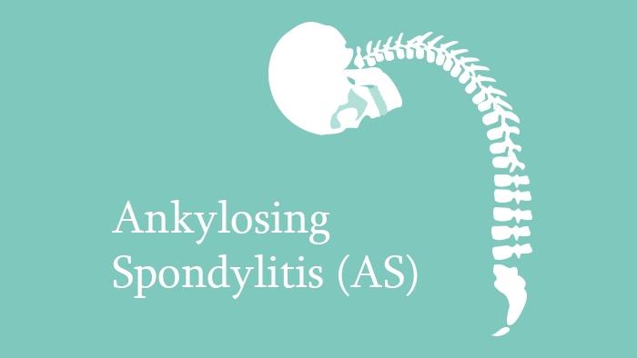 Ankylosing Spondylitis (AS) Lecture Thumbnail