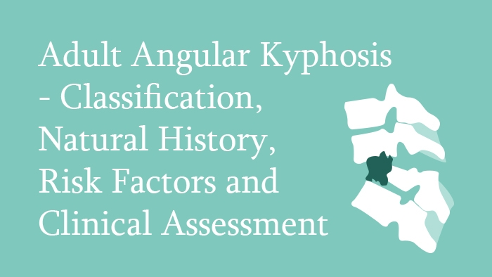 Adult Angular Kyphosis – Classification, Natural History, Risk Factors and Clinical Assessment Lecture Thumbnail