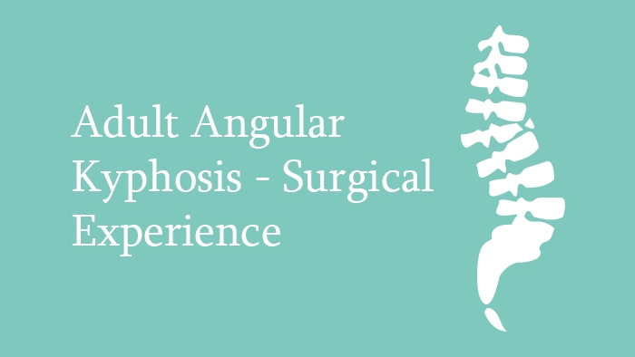 Adult Angular Kyphosis surgical treatment Lecture Thumbnail