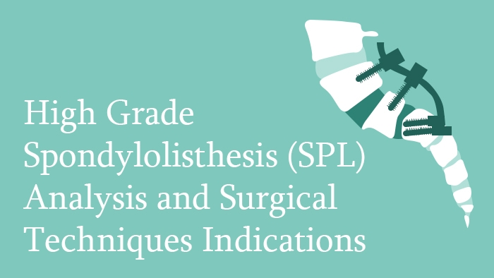 High Grade Spondylolisthesis (SPL) Analysis and Surgical Techniques Indications Lecture Thumbnail
