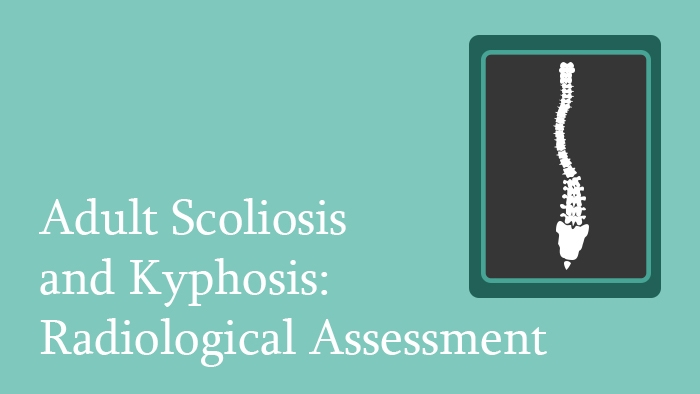 Adult Scoliosis and Kyphosis Radiological Assessment - Radiology Lecture - Thumbnail