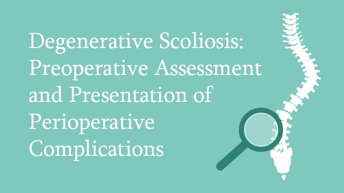 Degenerative Scoliosis: Preoperative Assessment and Prevention of Perioperative Complications Lecture Thumbnail