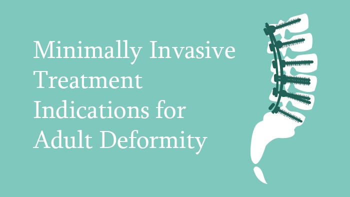 Minimally invasive treatment indications for adult deformity of the spine lecture thumbnail