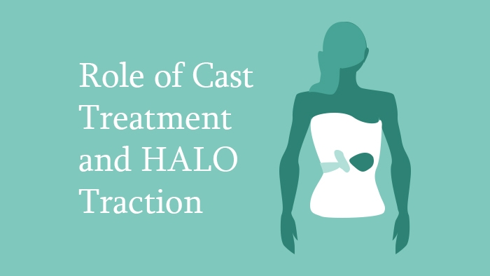 Role of Cast Treatment and HALO Traction Lecture Thumbnail