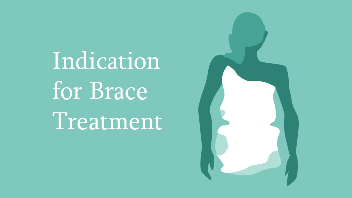 Indication for Brace Treatment Lecture Thumbnail