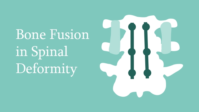 Bone fusion in Spinal Deformity Lecture Thumbnail