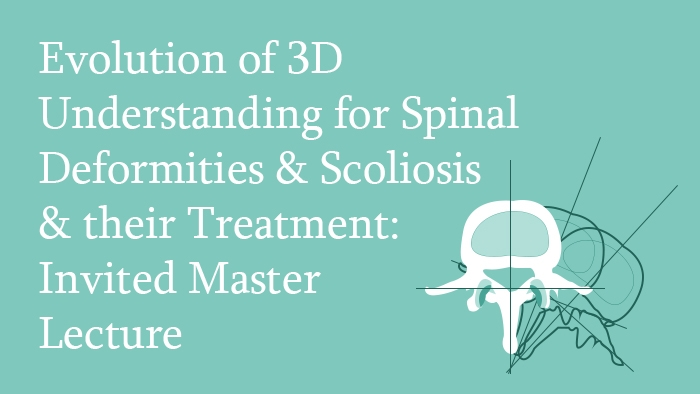 Invited Master Lecture: Evolution of the 3D Understanding for Spinal Deformities, Scoliosis and their Treatment Lecture Thumbnail